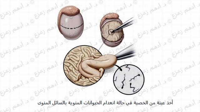 عينة الخصية بالميكروسكوب الجراحي