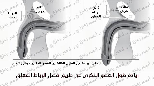 زيادة طول العضو الذكري عن طريق فصل الرباط المعلق