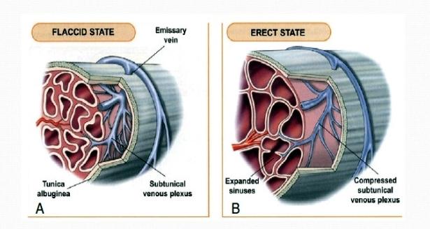 مرض القساح Priapism الأعراض و العلاج