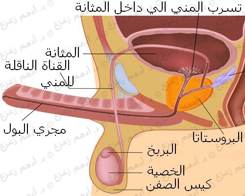 القذف الارتجاعي الأعراض و العلاج
