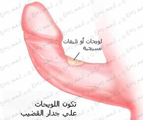 مرض بيروني أو انحناء القضيب المكتسب