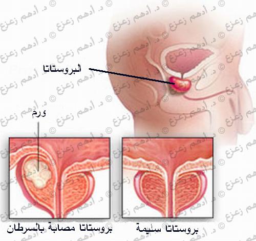 سرطان البروستاتا و ضعف الانتصاب