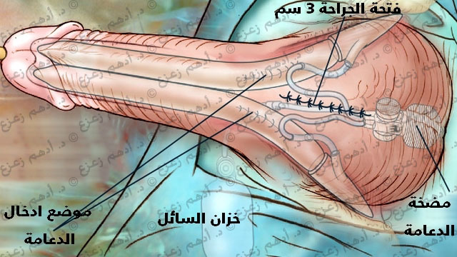 Permanent Penis Enlargement Surgery - Sava