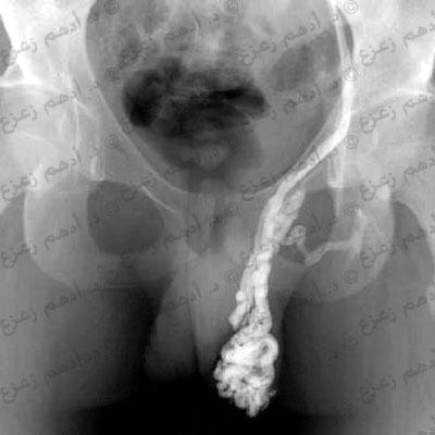 الأشعة توضح دوالي الخصية من الدرجة الثالثة